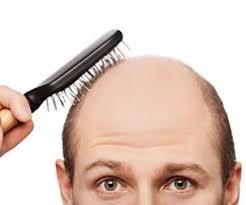 محصولات ضد ریزش مو <a href=