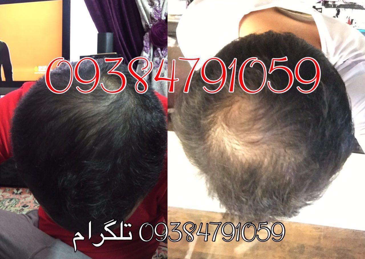 754455 8PFsBTlv - عکس بیماران تحت درمان محلول دکتر نوروزیان مو