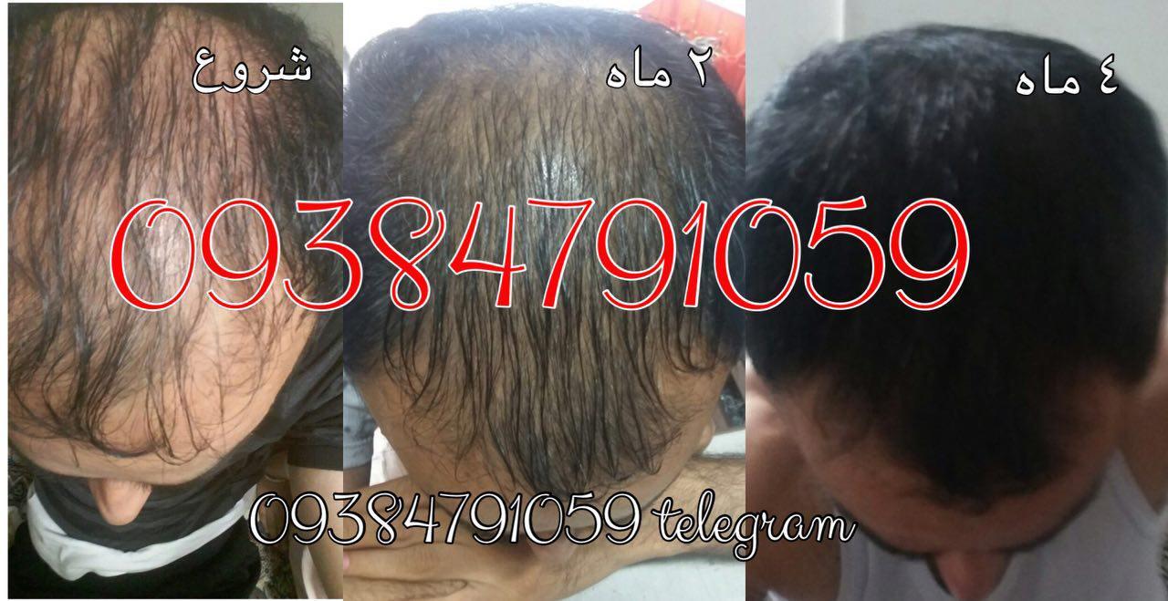 754455 LLKhyVWJ - عکس بیماران تحت درمان محلول دکتر نوروزیان مو