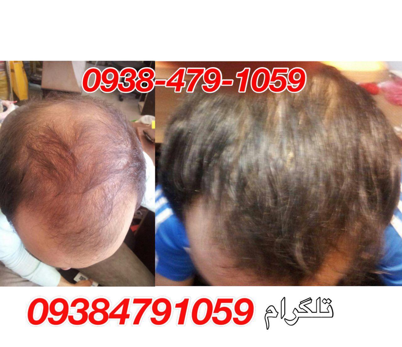 عکس بیماران تحت درمان محلول دکتر نوروزیان مو
