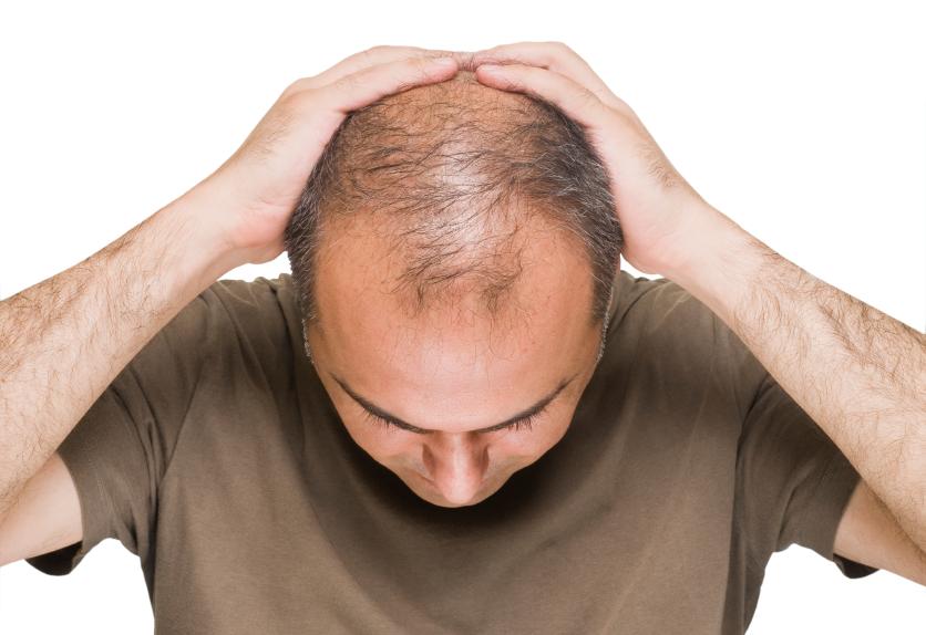 داروی ریزش مو ثبت شده دکتر نوروزیان