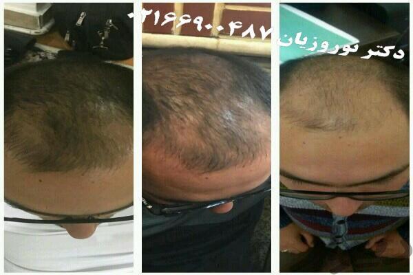 قرص برای رشد مو