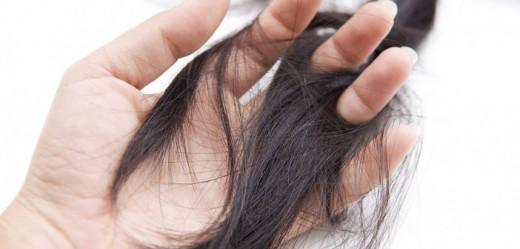 آیا ریزش موهایم طبیعی است؟