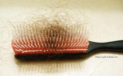 عوامل ریزش مو + راه درمان