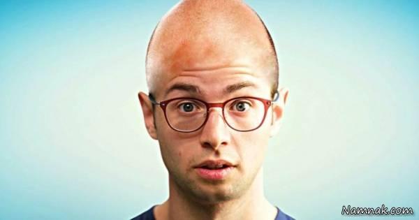 دلیل ریزش موی مردان بیشتر از زنان چیست؟