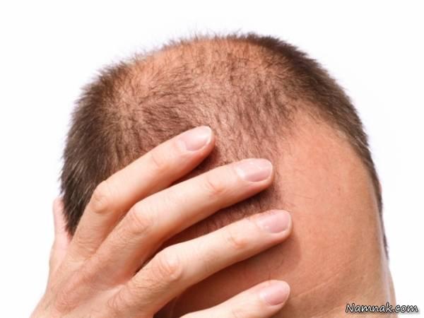 کی از عوامل ریزش مو در مردان ژنتیک است