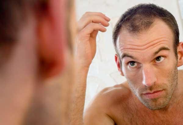 بررسی راه حل های درمان ریزش مو در مردان