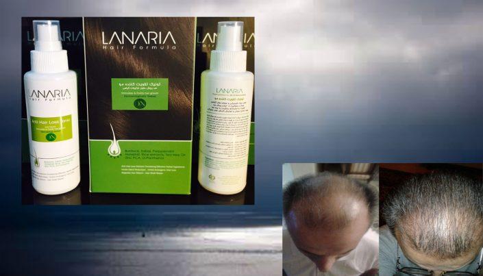 25236 705x403 1 - روشهای درمان درست ریزش مو