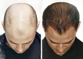 داروی رفع ریزش مو