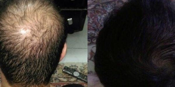 داروی گیاهی برای رشد مو