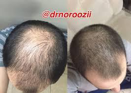معرفی چند گیاه برای تقویت مو