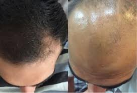 index3 - روشهای درمان درست ریزش مو
