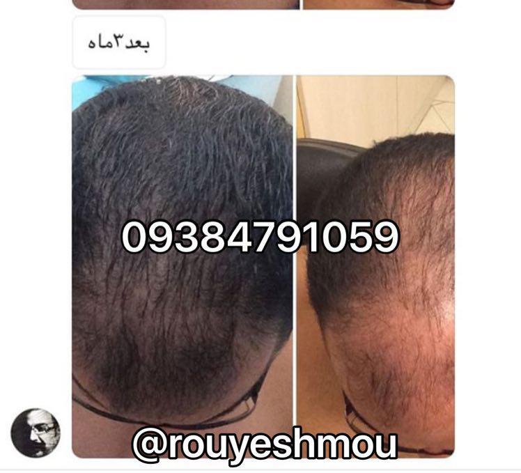 photo 2017 10 27 07 18 24 - روش های افزایش رشد مو دکترنوروزیان