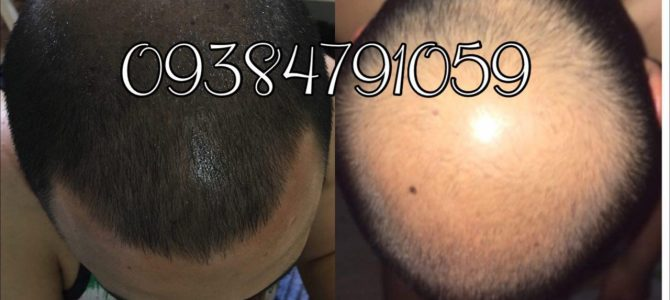 همه چیز در مورد داروی رشد موی دکتر نوروزیان
