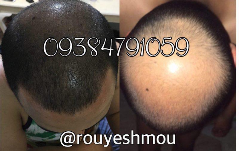photo 2017 10 27 07 18 37 800x508 - همه چیز در مورد داروی رشد موی دکتر نوروزیان