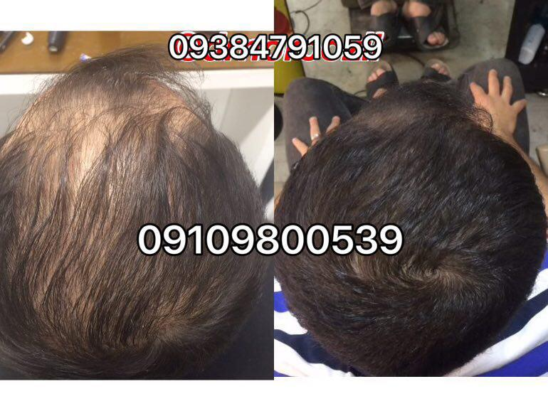 photo 2017 10 27 07 18 48 - روش های افزایش رشد مو دکترنوروزیان
