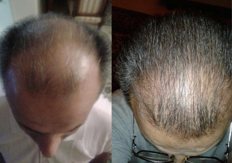 photo 2017 10 27 10 42 47 - روش های افزایش رشد مو دکترنوروزیان