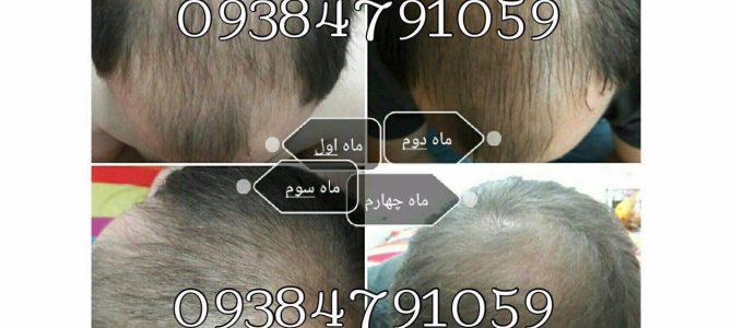 روشهای درمان صحیح ریزش مو