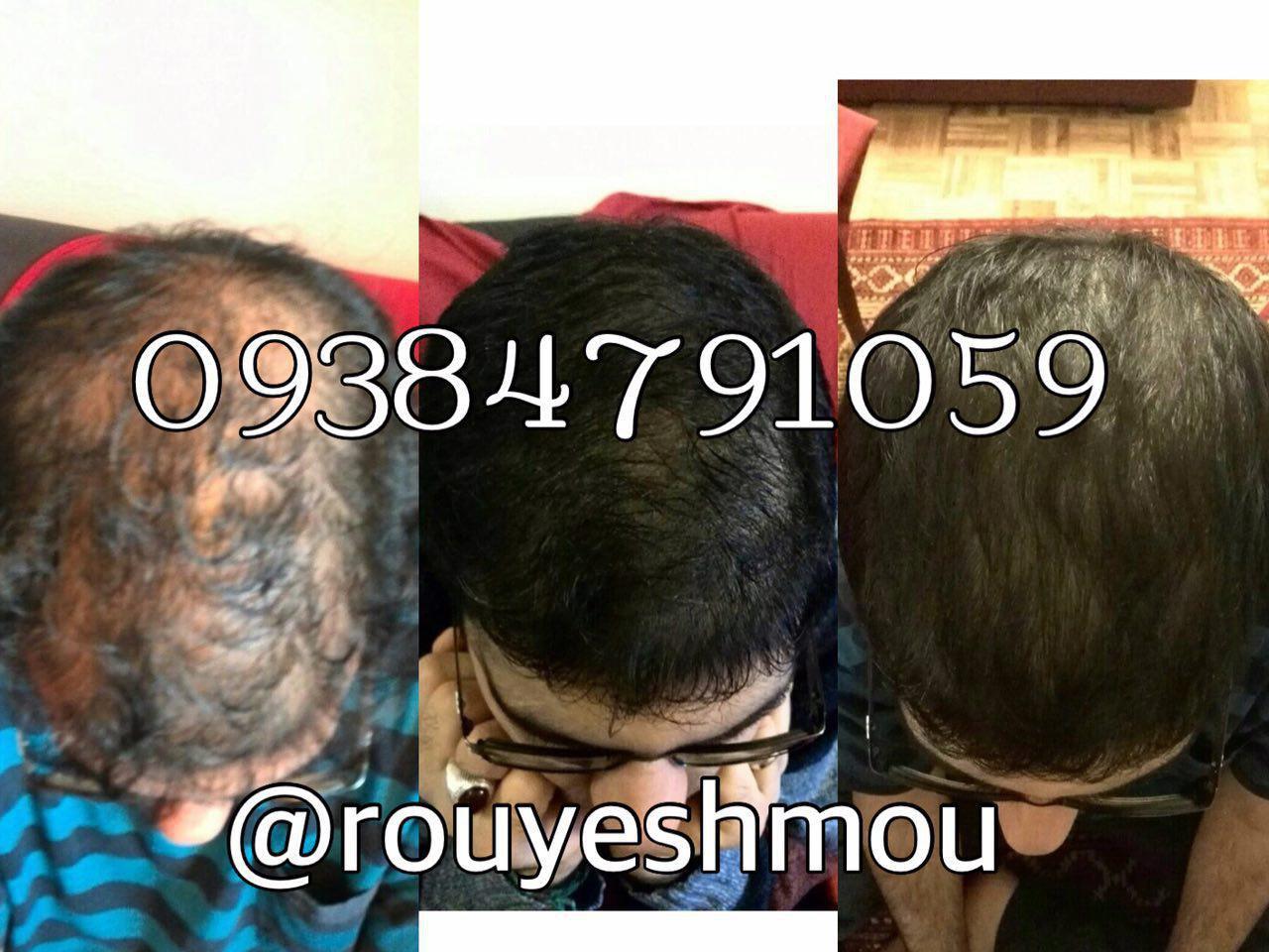 محلول رشد موی دکتر نوروزیان