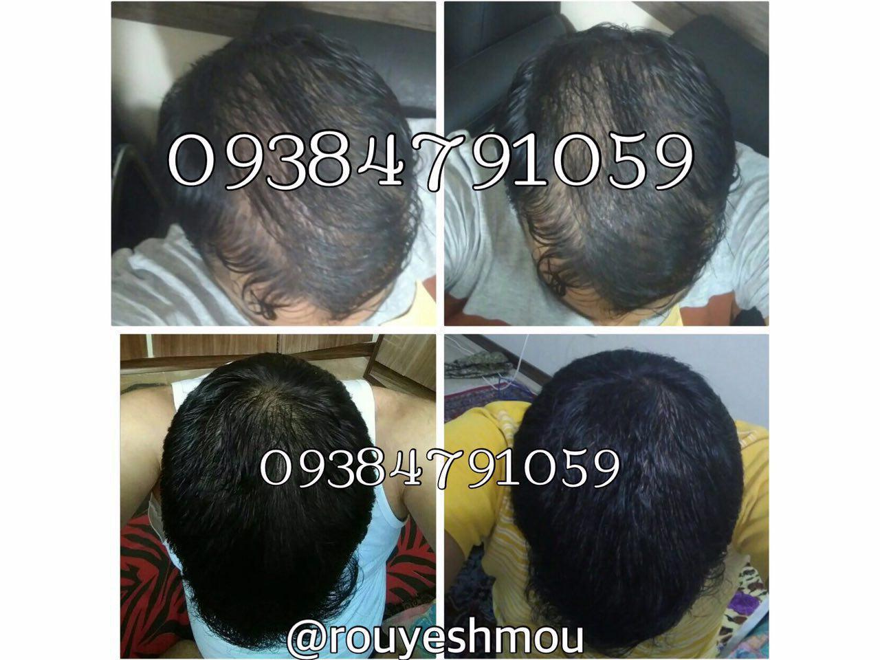 photo 2017 10 27 10 43 06 - روشهای درمان درست ریزش مو