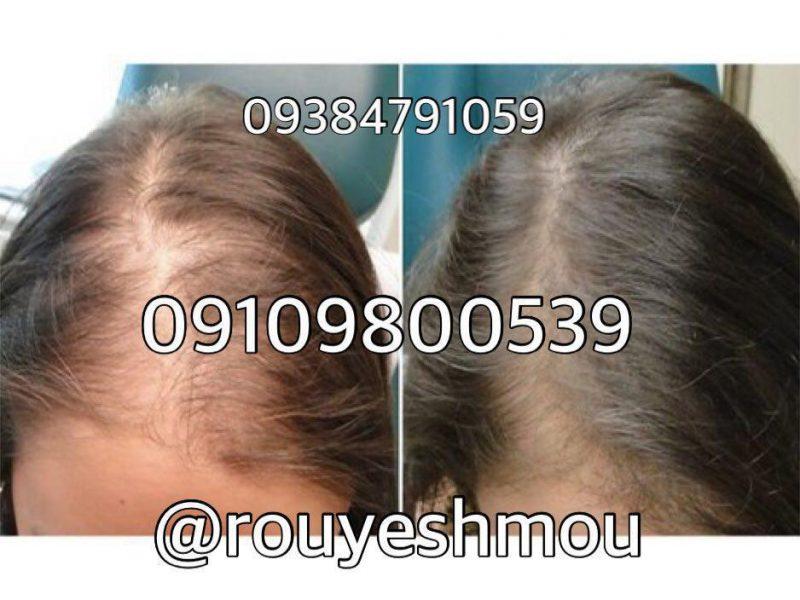 photo 2017 10 27 10 43 15 800x600 - توقف ریزش مو با چند فرمول طبیعی