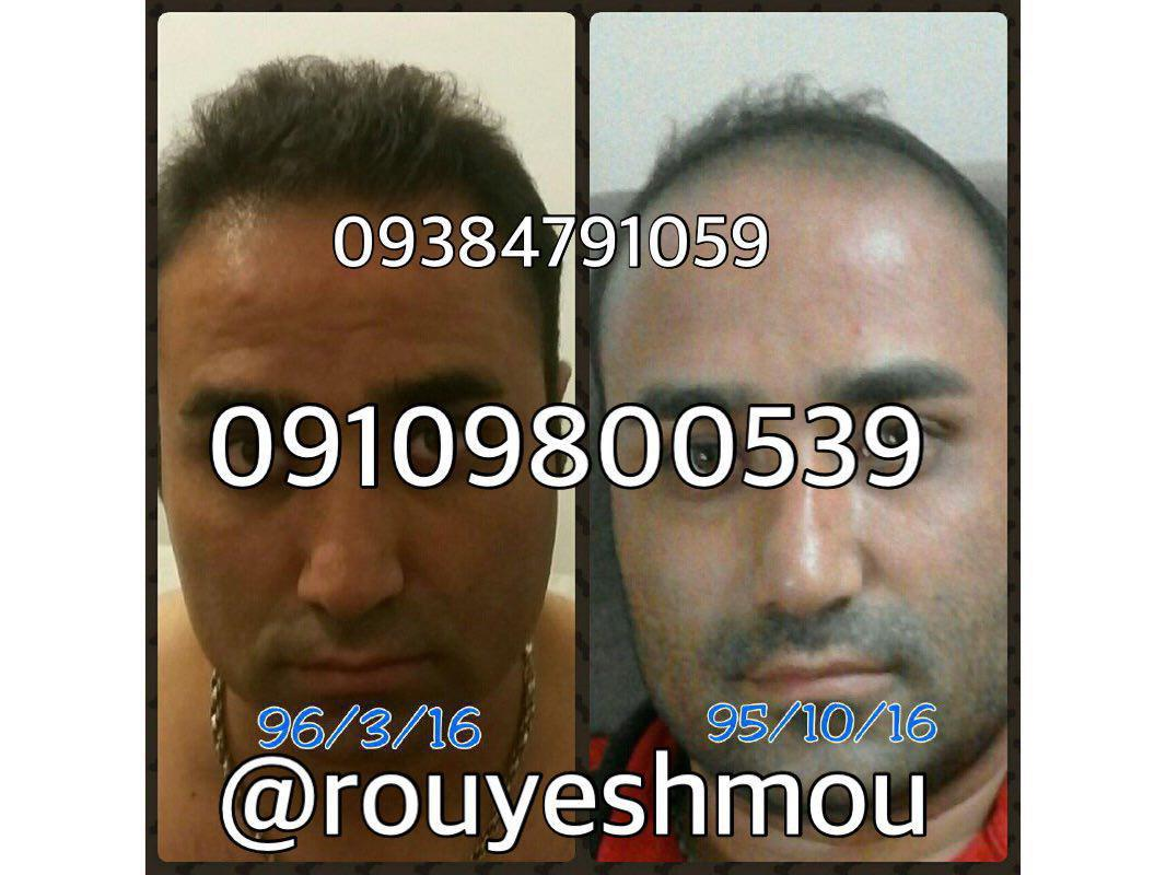 افزایش رشد مو با ۹ گام