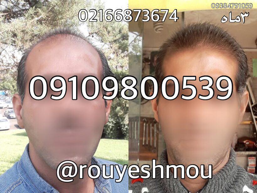 photo 2017 11 05 18 17 51 - روش های افزایش رشد مو دکترنوروزیان