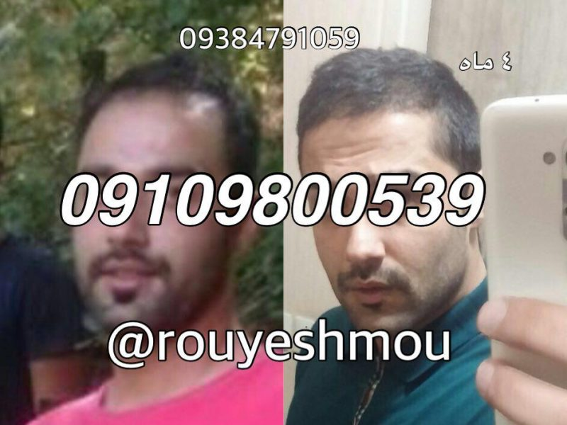 photo 2017 11 05 18 17 58 800x600 - شامپو برای رشد سریع مو