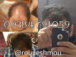 رشد مو در یک ماه چقدر است