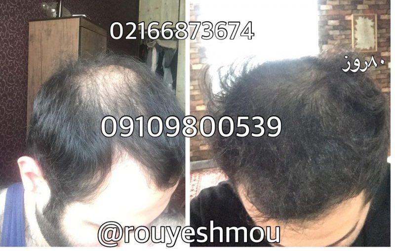 photo 2017 11 05 19 35 09 800x508 - شامپو افزایش سرعت رشد مو
