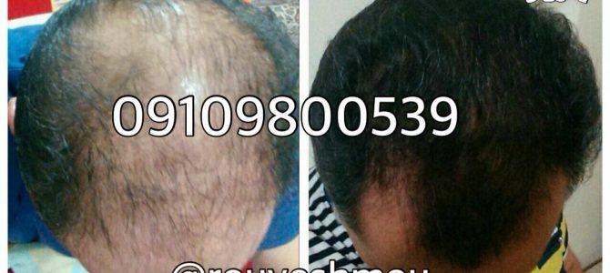 بهترین قرص برای رشد سریع موی سر