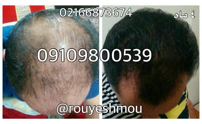 photo 2017 11 05 19 37 50 800x495 - بهترین قرص برای رشد سریع موی سر