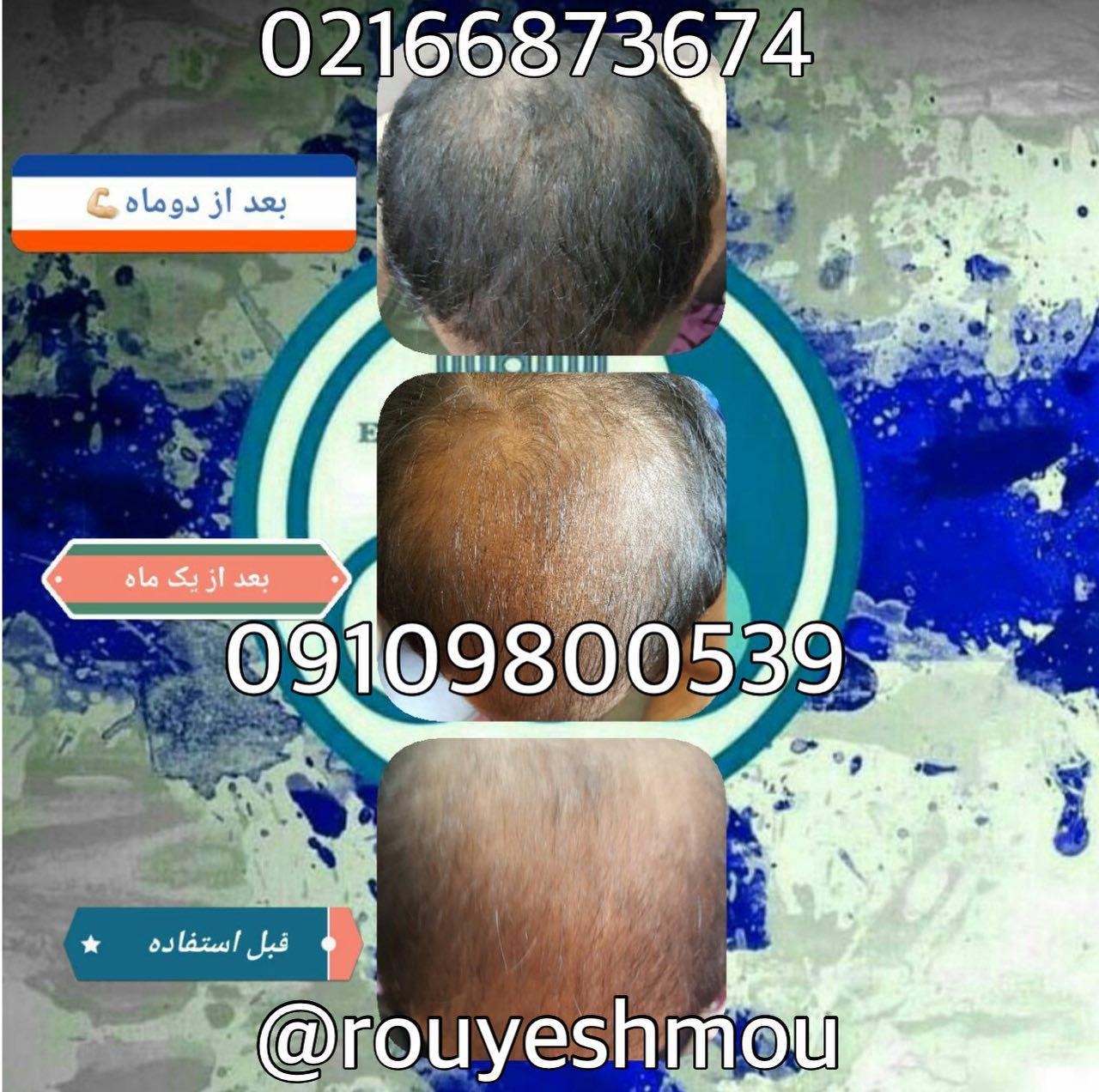 photo 2017 11 05 19 37 58 - روش های افزایش رشد مو دکترنوروزیان