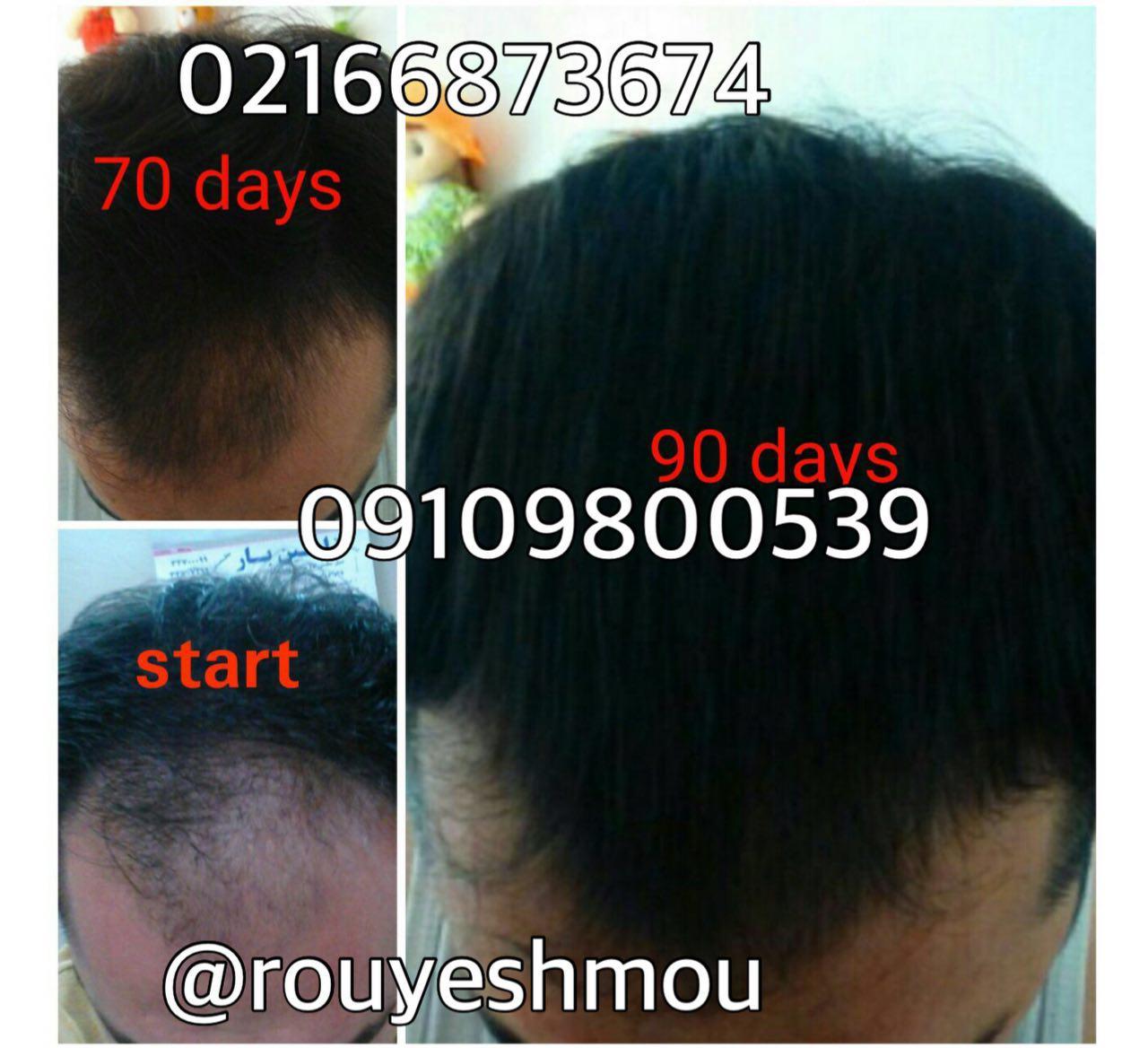 photo 2017 11 05 19 38 06 - روش های افزایش رشد مو دکترنوروزیان
