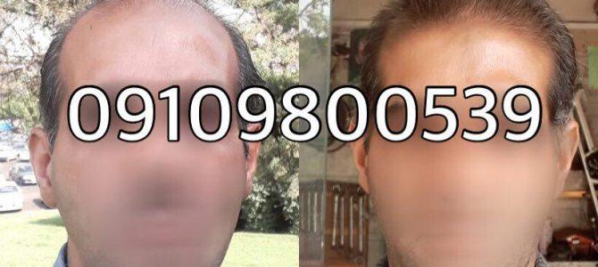 رشد مو و درمان ریزش مو دکترنوروزیان