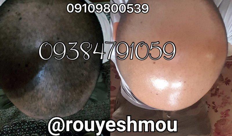 photo 2017 11 05 19 38 37 800x470 - قرص زینک برای ریزش مو