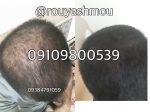 داروی گیاهی برای ریزش موی ارثی