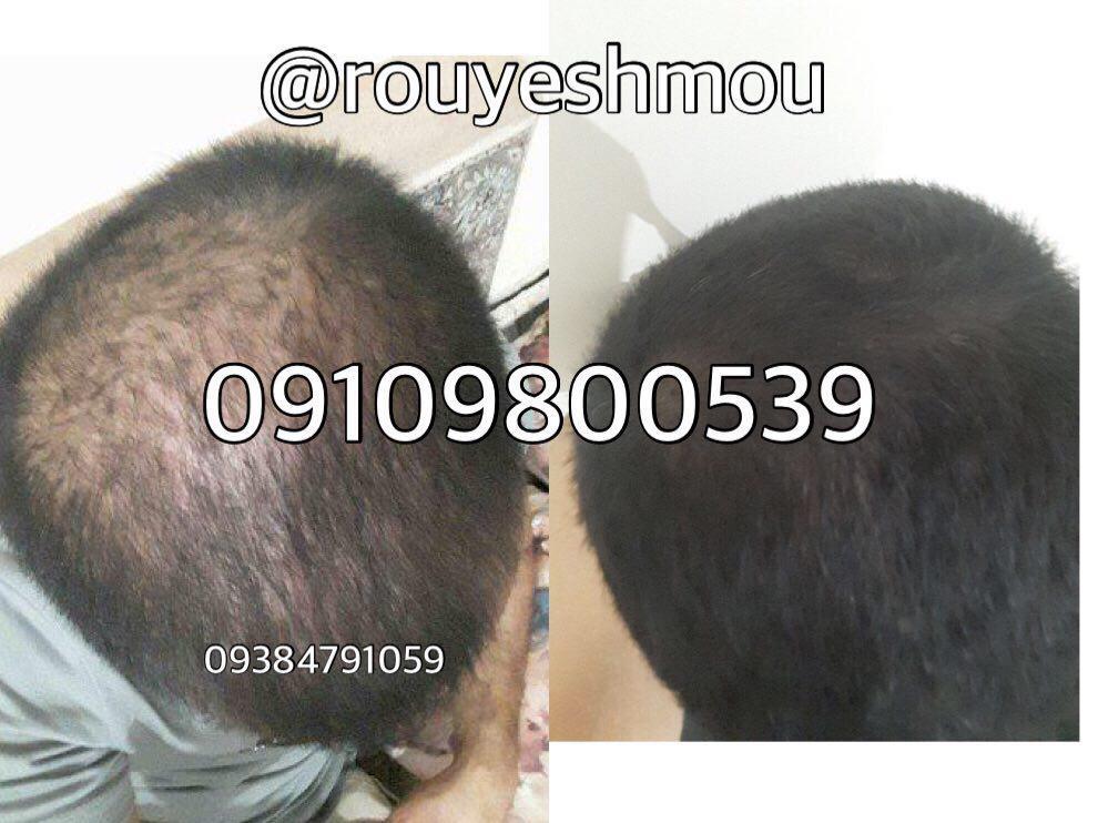 photo 2017 11 05 19 39 20 - روش های افزایش رشد مو دکترنوروزیان
