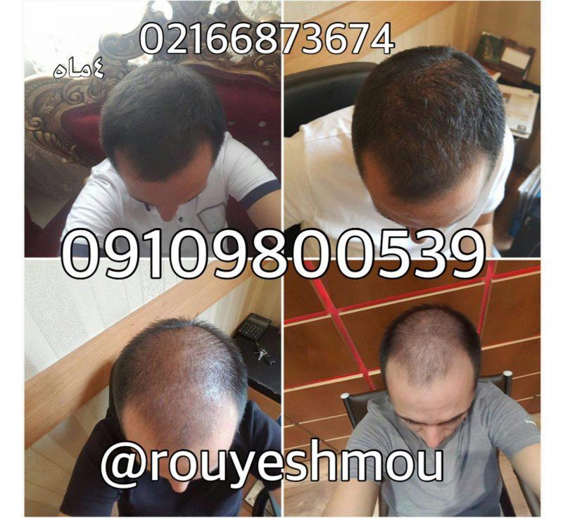 photo 2017 11 05 19 35 34 800x736 - ضد ریزش دکتر نوروزیان