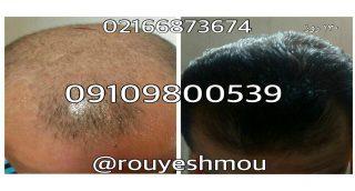 photo 2017 11 24 01 26 26 1 320x172 - تقویت مو با موثر ترین روش ها