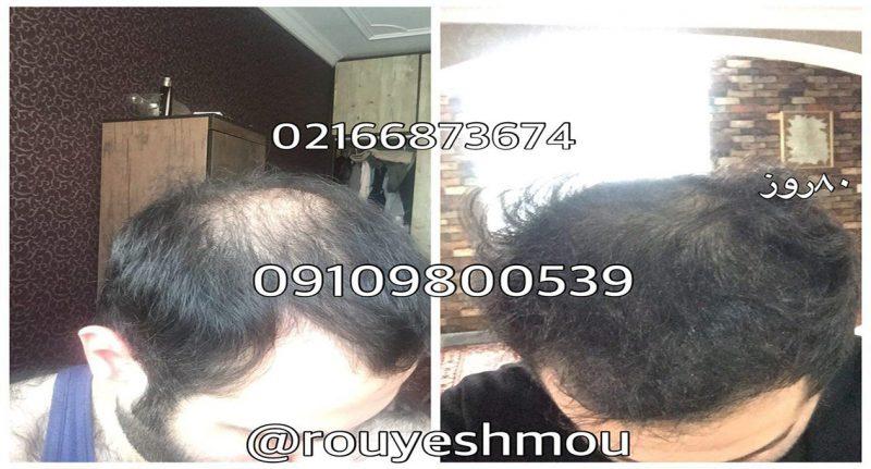 photo 2017 11 24 01 26 36 1 800x431 - روش های افزایش رشد مو