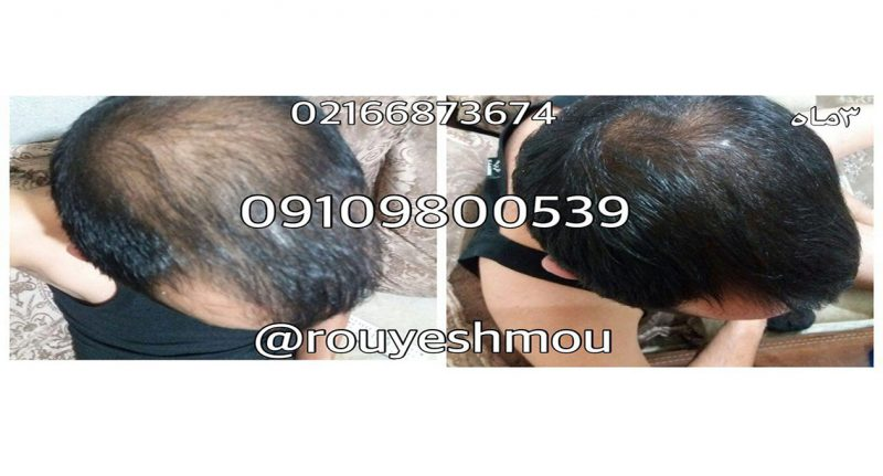 photo 2017 11 24 01 26 50 800x431 - راههای کم هزینه و موثر برای درمان ریزش مو
