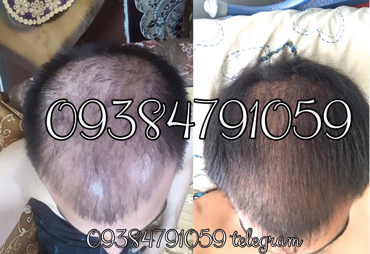 مزایای استفاده از روغن بادام برای رشد موها