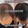 photo 2017 10 27 07 18 52 1 120x120 - روش های افزایش رشد مو دکترنوروزیان