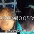 رشد مو با سیب زمینی
