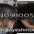 photo 2017 11 24 01 24 52 120x120 - روش های افزایش رشد مو دکترنوروزیان