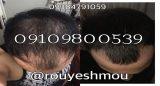 رشد سریع مو با ماسک خانگی