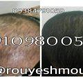 photo 2017 11 24 01 25 40 120x120 - رشد سریع مو با روغن زیتون