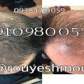 photo 2017 11 24 01 26 01 120x120 - روش های افزایش رشد مو دکترنوروزیان