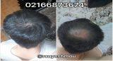 زینک پلاس برای مو